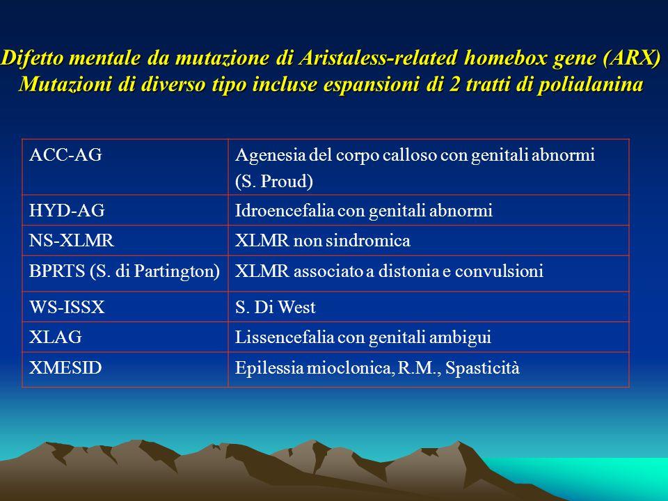 Difetto mentale da mutazione di Aristaless-related homebox gene (ARX) Mutazioni di diverso tipo incluse espansioni di 2 tratti di polialanina ACC-AGAg