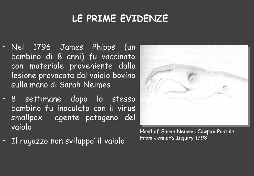 Nel 1796 James Phipps (un bambino di 8 anni) fu vaccinato con materiale proveniente dalla lesione provocata dal vaiolo bovino sulla mano di Sarah Neim