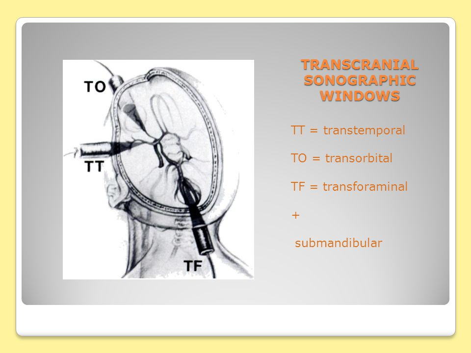 TRANSCRANIAL SONOGRAPHIC WINDOWS TT = transtemporal TO = transorbital TF = transforaminal + submandibular