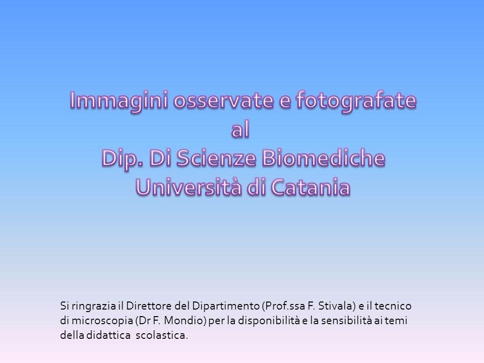 Si ringrazia il Direttore del Dipartimento (Prof.ssa F. Stivala) e il tecnico di microscopia (Dr F. Mondio) per la disponibilità e la sensibilità ai t