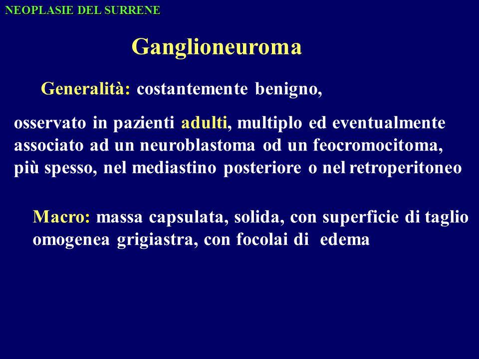 Ganglioneuroma Generalità:costantemente benigno, osservato in pazienti adulti, multiplo ed eventualmente associato ad un neuroblastoma od un feocromocitoma, più spesso, nel mediastino posteriore o nelretroperitoneo Macro: massa capsulata, solida, con superficie di taglio omogenea grigiastra, con focolai di edema NEOPLASIE DEL SURRENE