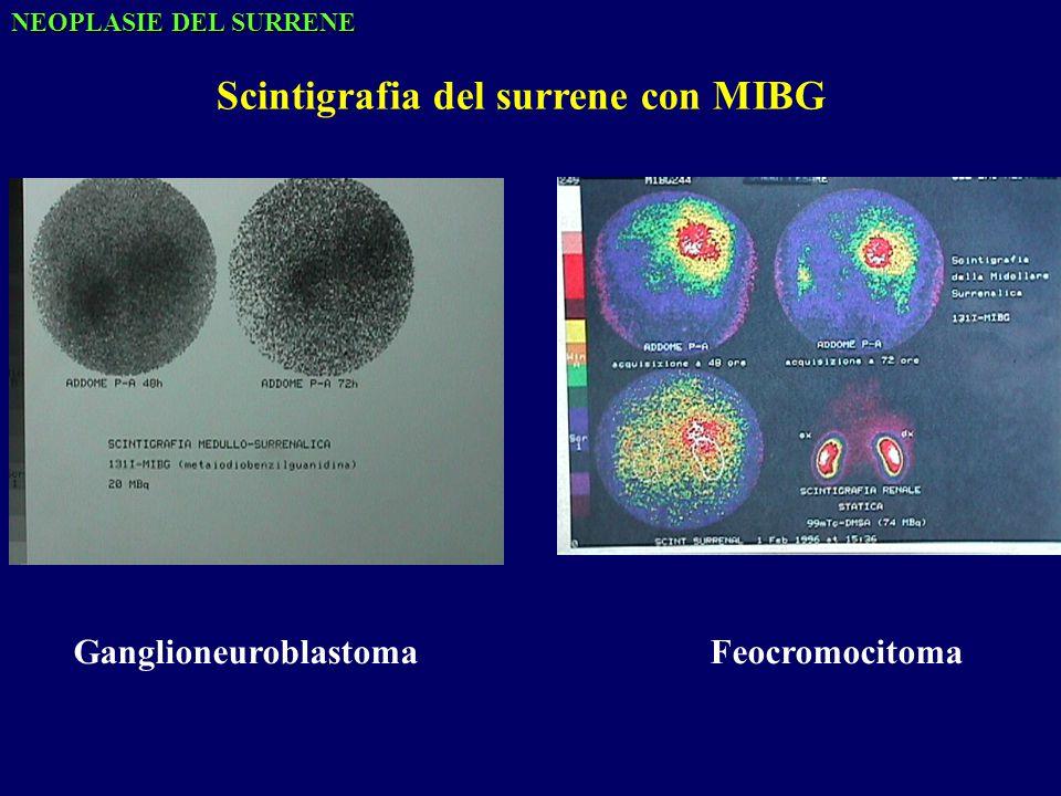 Scintigrafia del surrene con MIBG GanglioneuroblastomaFeocromocitoma NEOPLASIE DEL SURRENE
