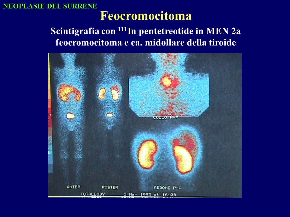 Scintigrafia con 111 In pentetreotide in MEN 2a feocromocitoma e ca.