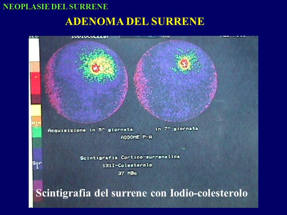 Scintigrafia del surrene con Iodio-colesterolo NEOPLASIE DEL SURRENE ADENOMA DEL SURRENE