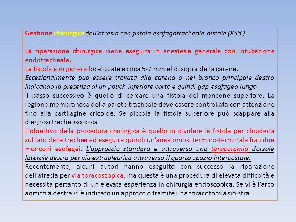 Gestione chirurgica dell'atresia con fistola esofagotracheale distale (85%). La riparazione chirurgica viene eseguita in anestesia generale con intuba