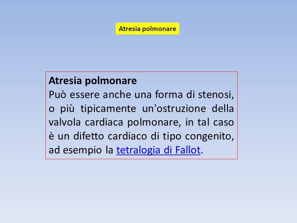 Atresia polmonare Può essere anche una forma di stenosi, o più tipicamente un'ostruzione della valvola cardiaca polmonare, in tal caso è un difetto ca