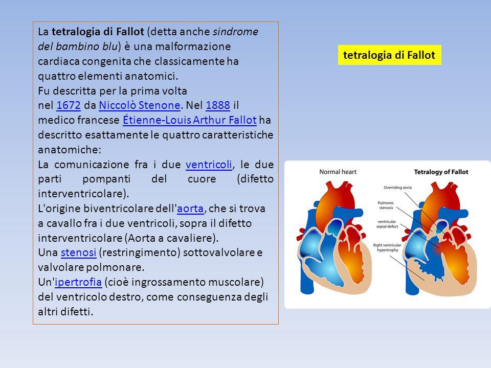 La tetralogia di Fallot (detta anche sindrome del bambino blu) è una malformazione cardiaca congenita che classicamente ha quattro elementi anatomici.