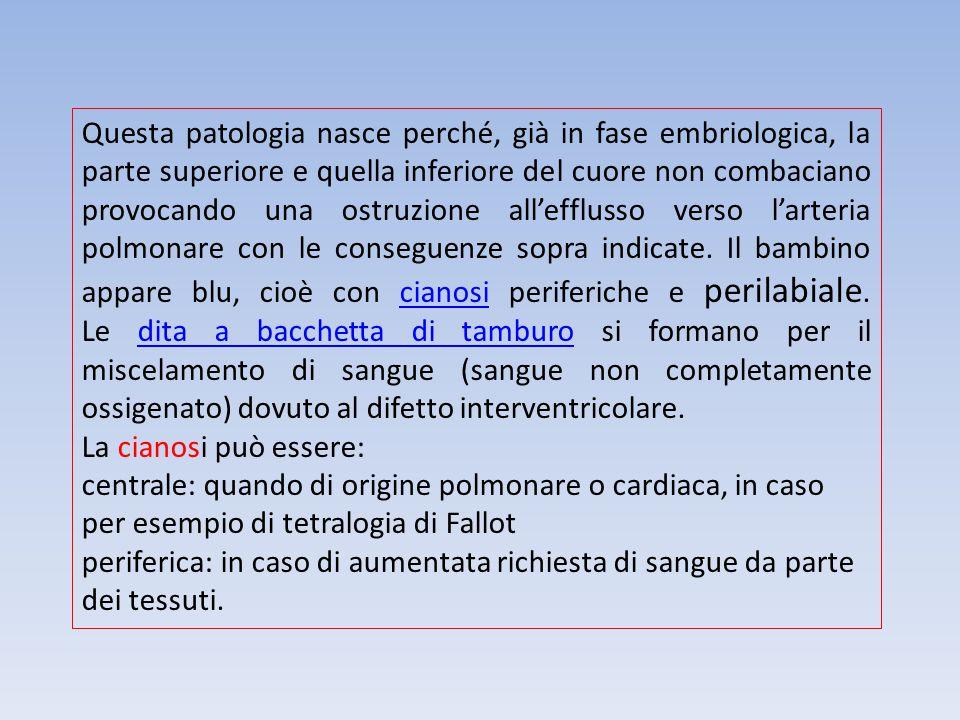 Questa patologia nasce perché, già in fase embriologica, la parte superiore e quella inferiore del cuore non combaciano provocando una ostruzione all'