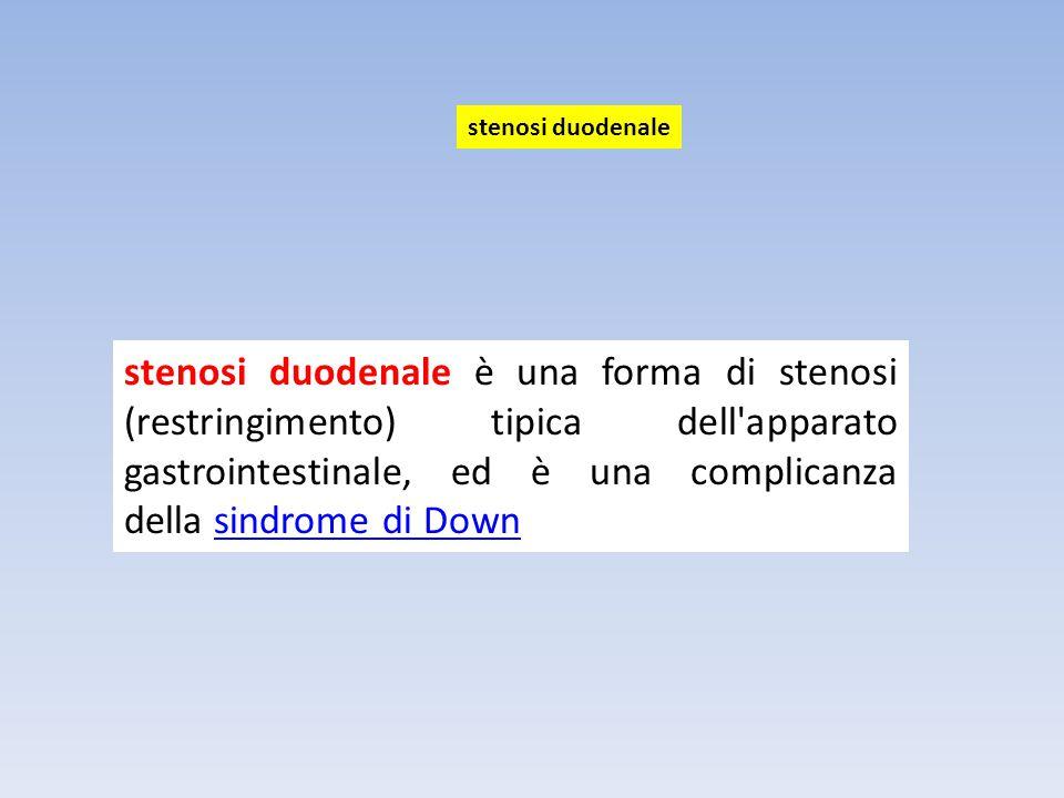 stenosi duodenale è una forma di stenosi (restringimento) tipica dell'apparato gastrointestinale, ed è una complicanza della sindrome di Downsindrome