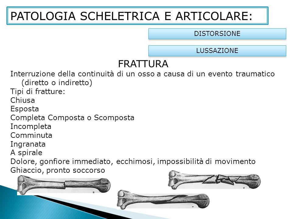 FRATTURA Interruzione della continuità di un osso a causa di un evento traumatico (diretto o indiretto) Tipi di fratture: Chiusa Esposta Completa Comp