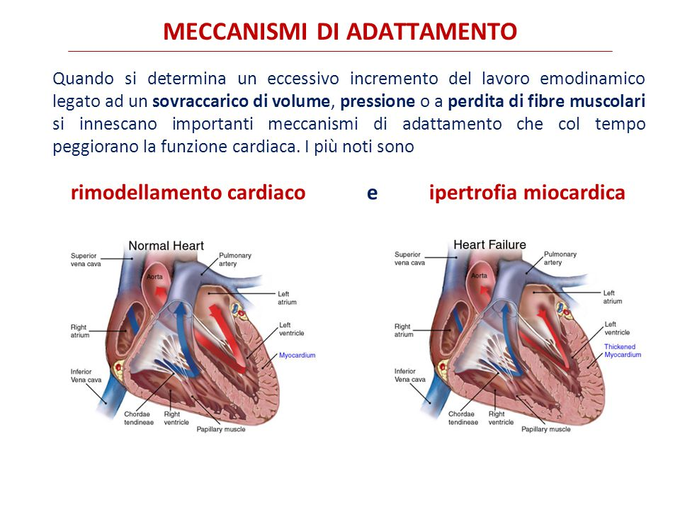Quando si determina un eccessivo incremento del lavoro emodinamico legato ad un sovraccarico di volume, pressione o a perdita di fibre muscolari si innescano importanti meccanismi di adattamento che col tempo peggiorano la funzione cardiaca.