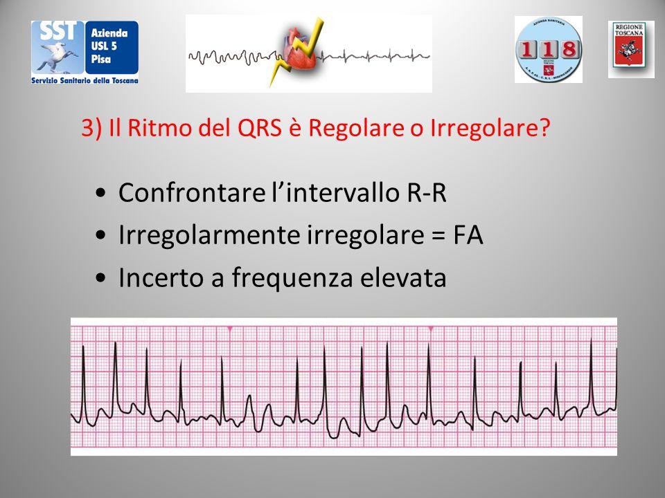 3) Il Ritmo del QRS è Regolare o Irregolare? Confrontare l'intervallo R-R Irregolarmente irregolare = FA Incerto a frequenza elevata
