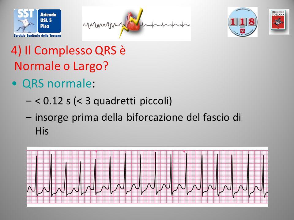 4) Il Complesso QRS è Normale o Largo? QRS normale: –< 0.12 s (< 3 quadretti piccoli) –insorge prima della biforcazione del fascio di His