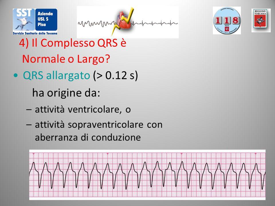4) Il Complesso QRS è Normale o Largo? QRS allargato (> 0.12 s) ha origine da: –attività ventricolare, o –attività sopraventricolare con aberranza di