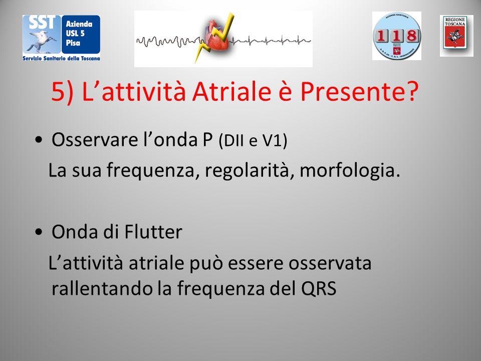 5) L'attività Atriale è Presente? Osservare l'onda P (DII e V1) La sua frequenza, regolarità, morfologia. Onda di Flutter L'attività atriale può esser