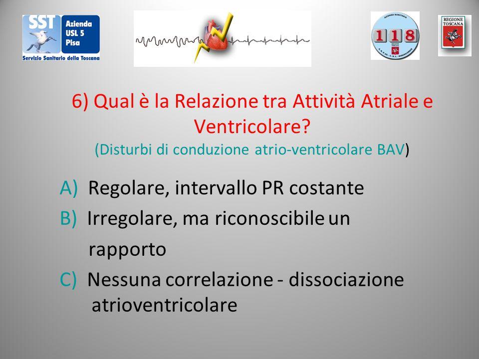 6) Qual è la Relazione tra Attività Atriale e Ventricolare? (Disturbi di conduzione atrio-ventricolare BAV) A) Regolare, intervallo PR costante B) Irr