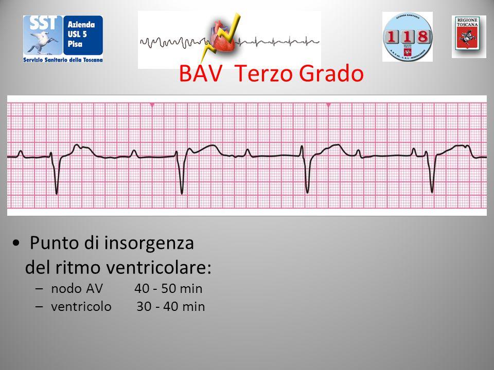 BAV Terzo Grado Punto di insorgenza del ritmo ventricolare: –nodo AV 40 - 50 min –ventricolo 30 - 40 min