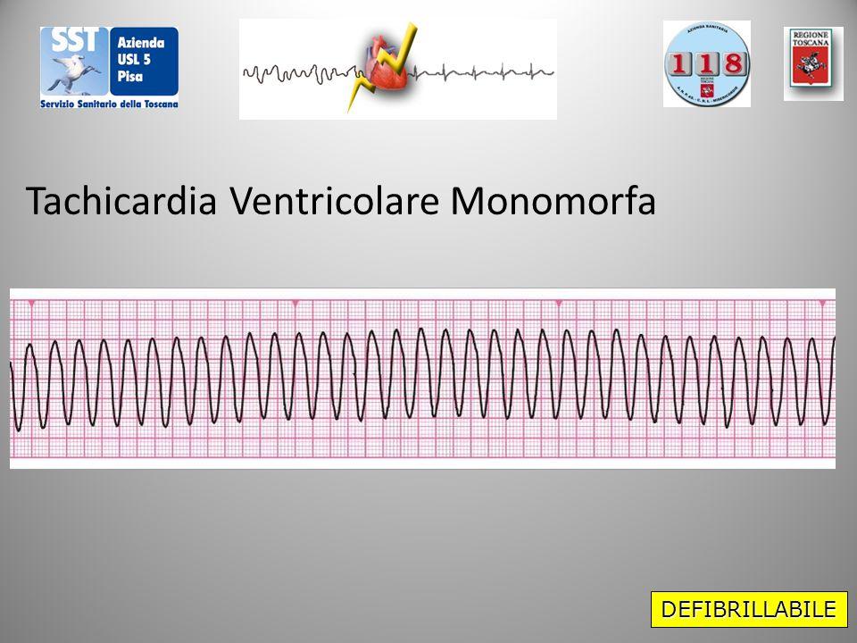 DEFIBRILLABILE Tachicardia Ventricolare Monomorfa