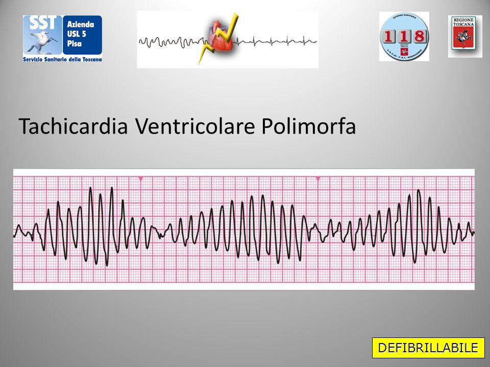 DEFIBRILLABILE Tachicardia Ventricolare Polimorfa