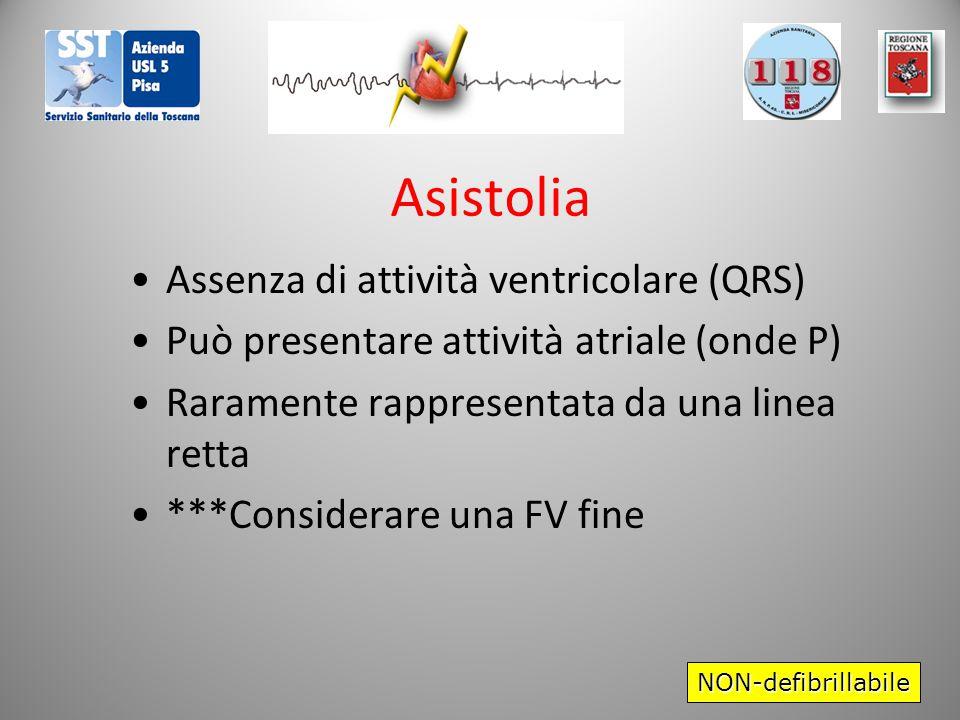 Asistolia Assenza di attività ventricolare (QRS) Può presentare attività atriale (onde P) Raramente rappresentata da una linea retta ***Considerare una FV fine NON-defibrillabile