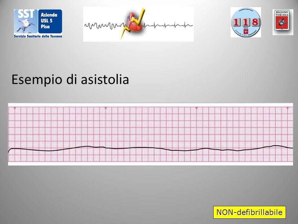 NON-defibrillabile Esempio di asistolia
