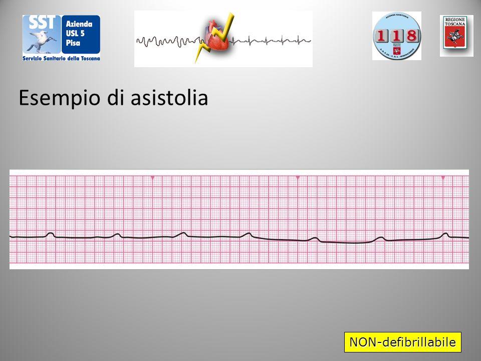NON-defibrillabile