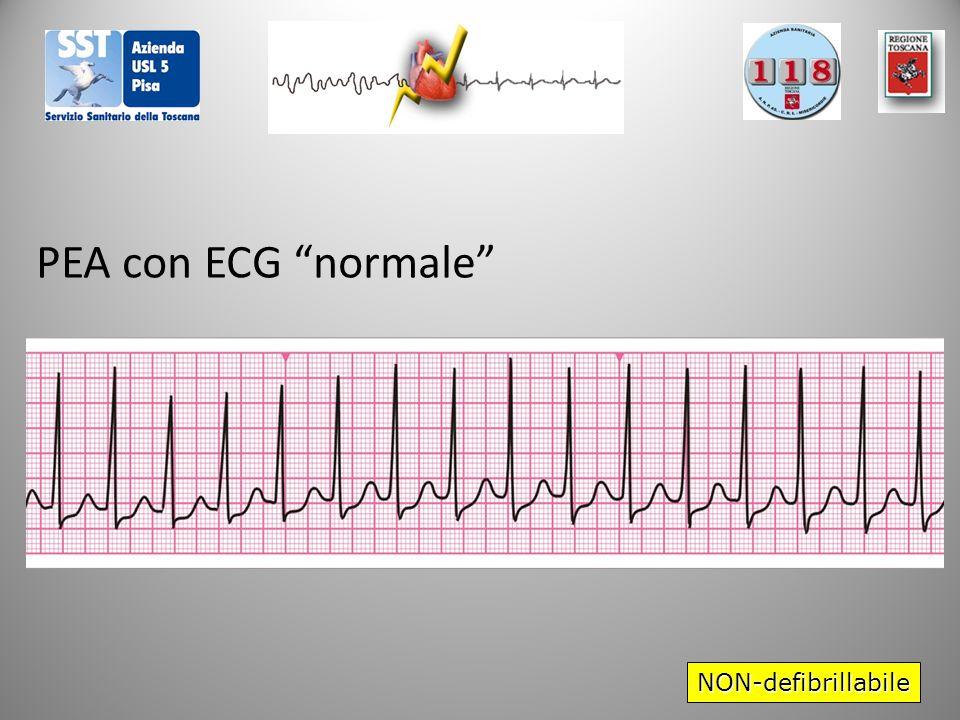 """NON-defibrillabile PEA con ECG """"normale"""""""
