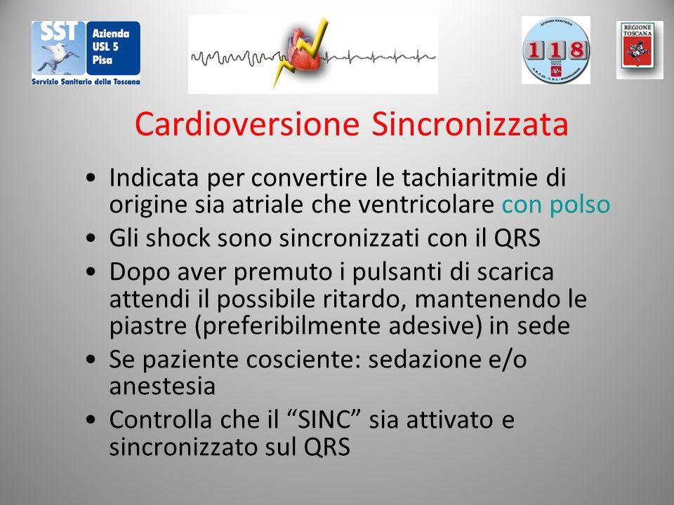 Cardioversione Sincronizzata Indicata per convertire le tachiaritmie di origine sia atriale che ventricolare con polso Gli shock sono sincronizzati con il QRS Dopo aver premuto i pulsanti di scarica attendi il possibile ritardo, mantenendo le piastre (preferibilmente adesive) in sede Se paziente cosciente: sedazione e/o anestesia Controlla che il SINC sia attivato e sincronizzato sul QRS