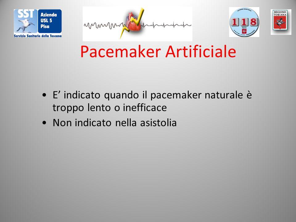 Pacemaker Artificiale E' indicato quando il pacemaker naturale è troppo lento o inefficace Non indicato nella asistolia