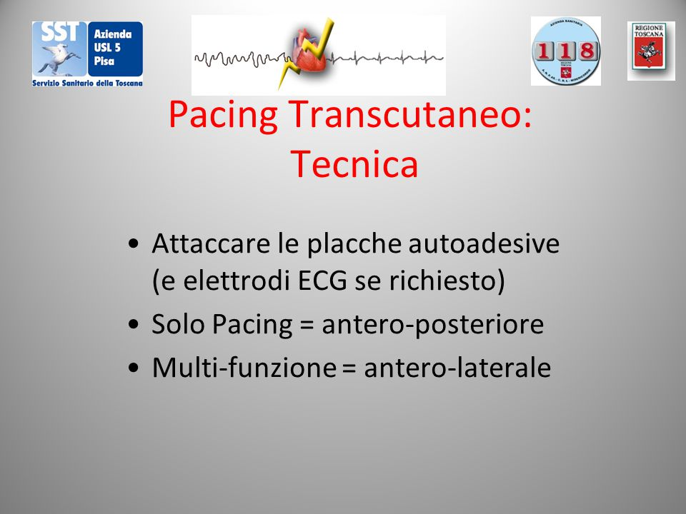 Pacing Transcutaneo: Tecnica Attaccare le placche autoadesive (e elettrodi ECG se richiesto) Solo Pacing = antero-posteriore Multi-funzione = antero-laterale