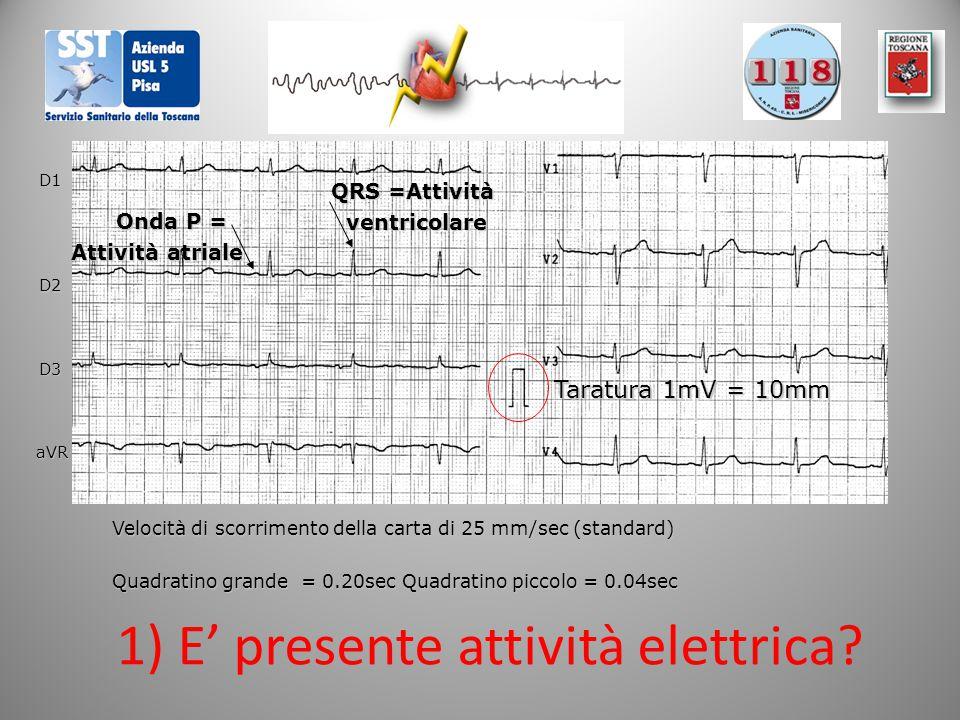 Onda P = Onda P = Attività atriale QRS =Attività ventricolare 1) E' presente attività elettrica? D1 D2 D3 aVR Quadratino grande = 0.20sec Quadratino p