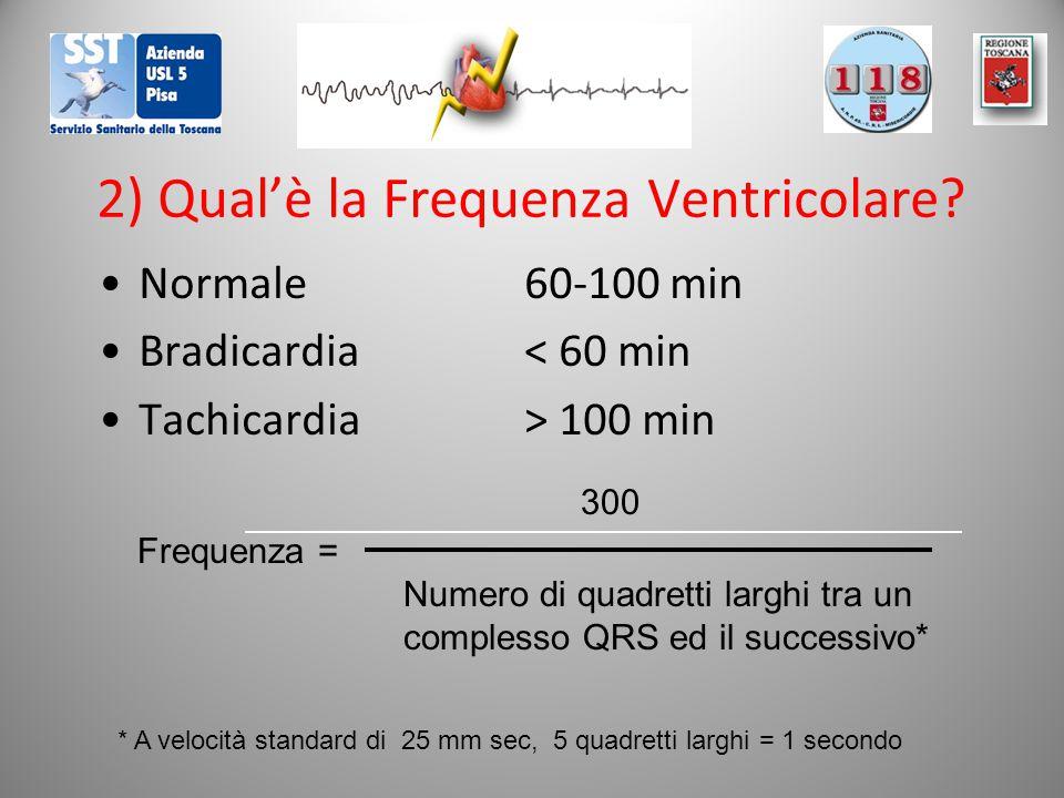 2) Qual'è la Frequenza Ventricolare? Normale 60-100 min Bradicardia< 60 min Tachicardia> 100 min 300 Frequenza = Numero di quadretti larghi tra un com