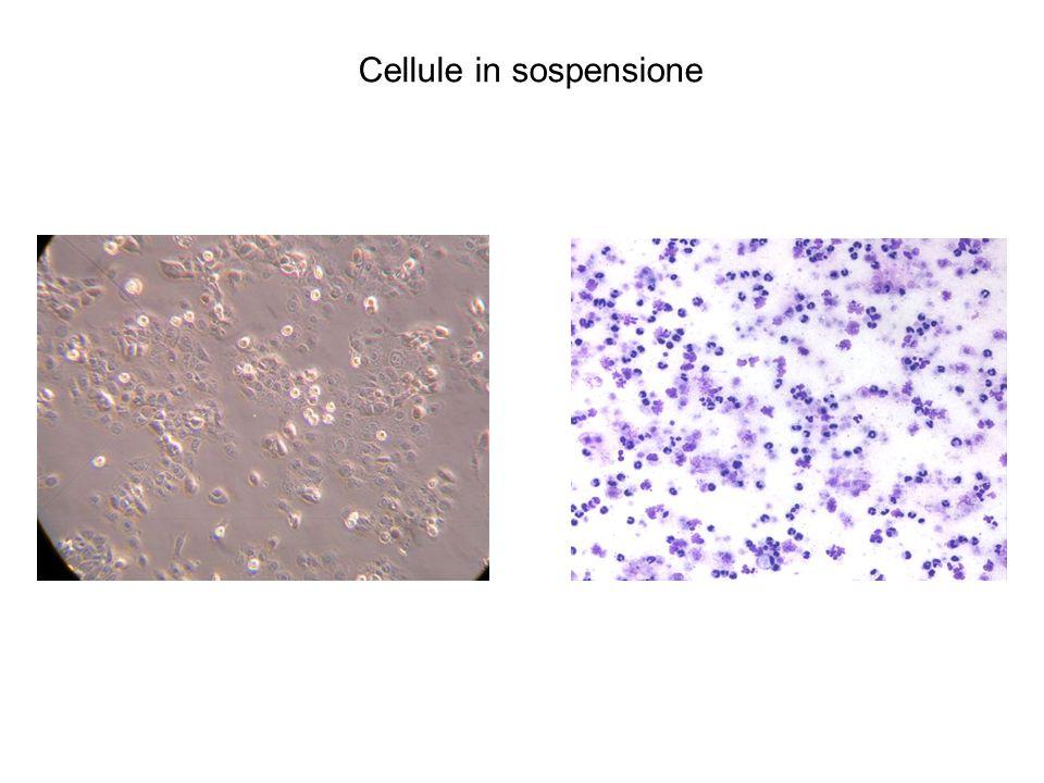 Cellule in sospensione