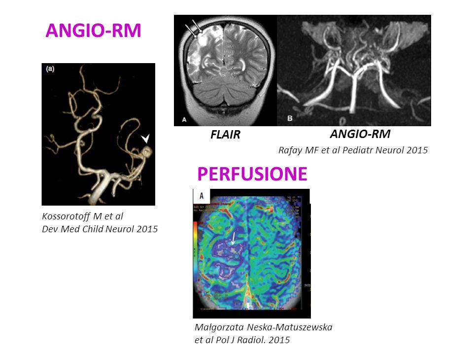 Kossorotoff M et al Dev Med Child Neurol 2015 ANGIO-RM FLAIR ANGIO-RM Rafay MF et al Pediatr Neurol 2015 PERFUSIONE Małgorzata Neska-Matuszewska et al Pol J Radiol.
