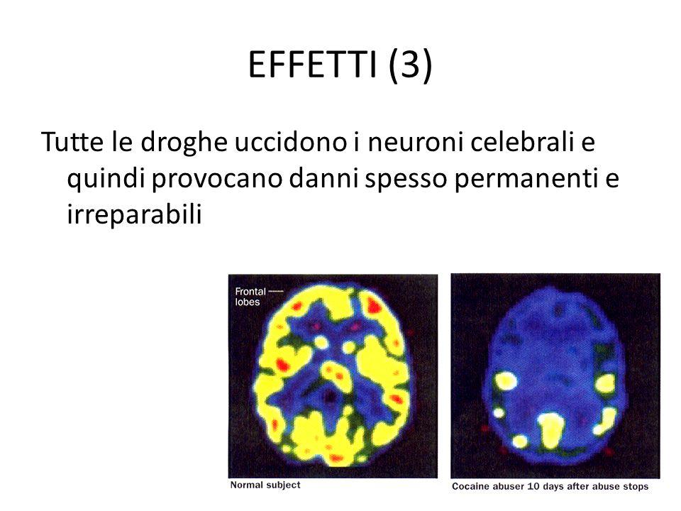 EFFETTI (3) Tutte le droghe uccidono i neuroni celebrali e quindi provocano danni spesso permanenti e irreparabili