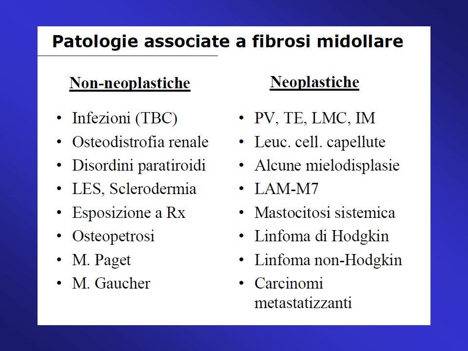 Neoplasia o disordine clonale mieloproliferativo della cellula staminale emopoietica caratterizzato:da: - fibrosi midollare - emopoiesi extramidollare (metaplasia mieloide spleno-epatica) - eritropoiesi inefficace - iperplasia displastica megacariocitaria - aumento forme mieloidi ed eritroidi immature circolanti CLASSIFICAZIONE WHO 2008