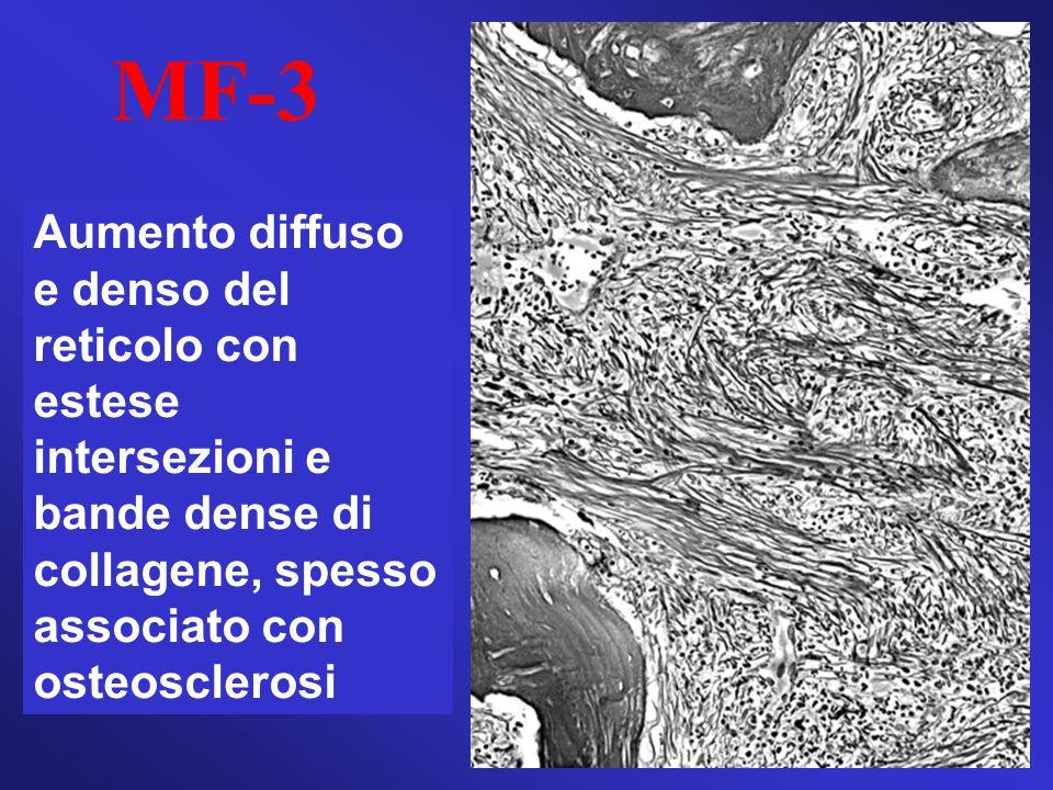 MF-3 Aumento diffuso e denso del reticolo con estese intersezioni e bande dense di collagene, spesso associato con osteosclerosi