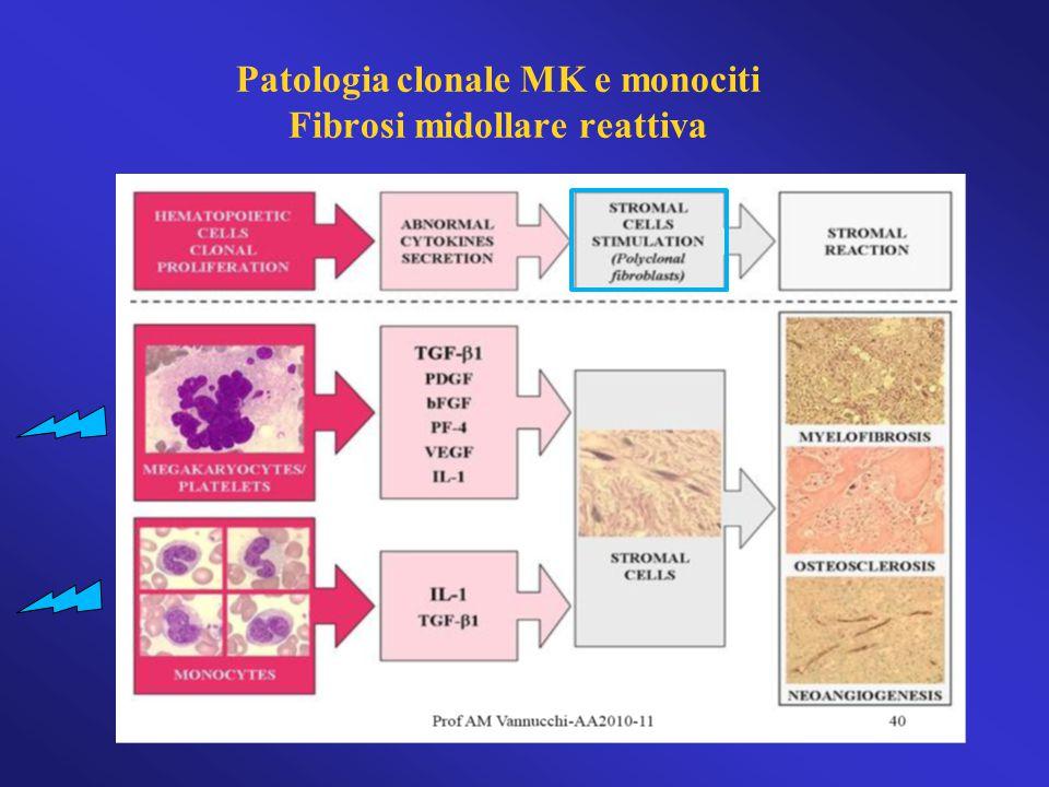 L'alterazione del signaling di JAK1 e JAK2 è responsabile delle manifestazioni cliniche della MF JAK2JAK1 Emopoiesi extramidollare (splenomegalia) Sintomi costituzionali Fibrosi Mieloproliferazione  Citochine infiammatorie Eritropoiesi inefficace Verstovsek S, et al.