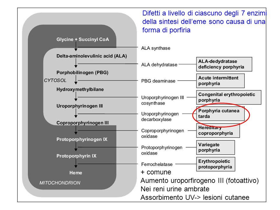 Difetti a livello di ciascuno degli 7 enzimi della sintesi dell'eme sono causa di una forma di porfiria + comune Aumento uroporfirogeno III (fotoattiv
