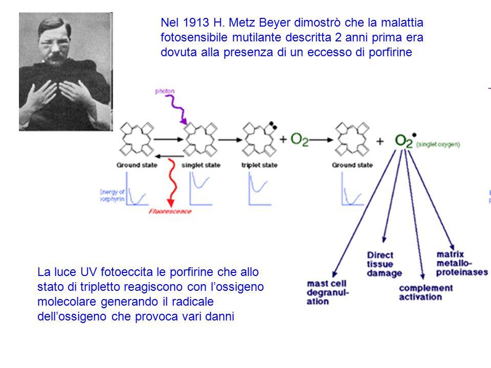 Nel 1913 H. Metz Beyer dimostrò che la malattia fotosensibile mutilante descritta 2 anni prima era dovuta alla presenza di un eccesso di porfirine La