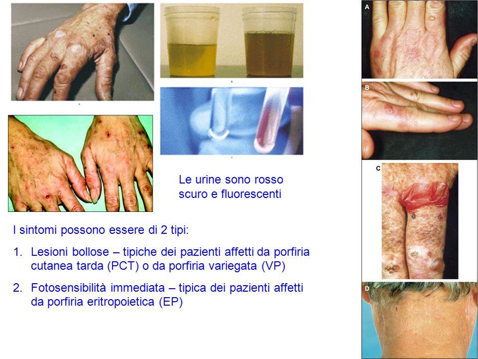 I sintomi possono essere di 2 tipi: 1.Lesioni bollose – tipiche dei pazienti affetti da porfiria cutanea tarda (PCT) o da porfiria variegata (VP) 2.Fo