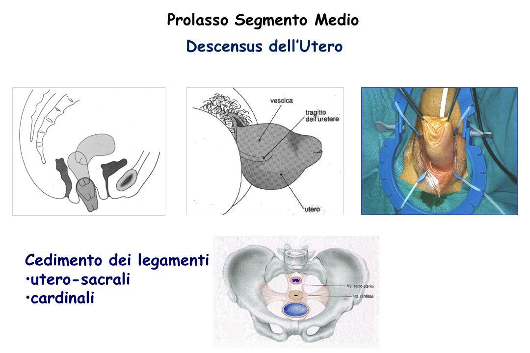 Descensus dell'Utero Cedimento dei legamenti utero-sacrali cardinali Prolasso Segmento Medio