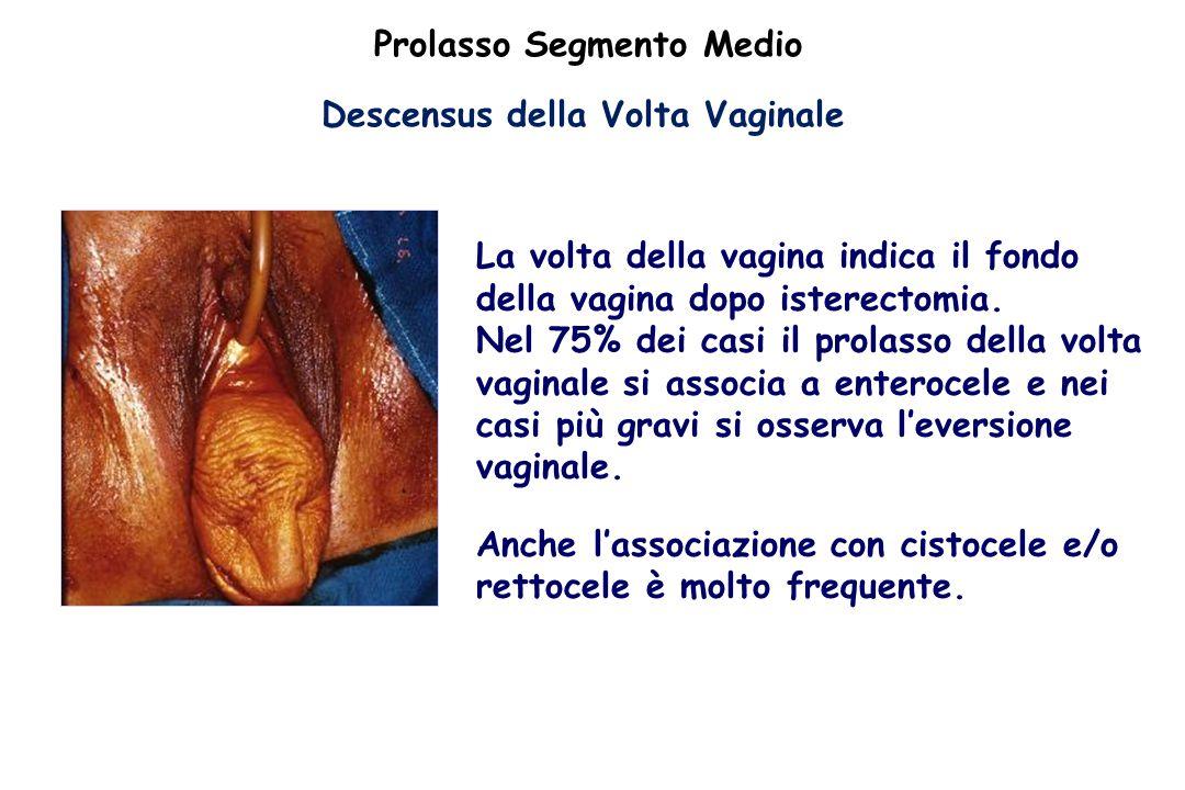 Descensus della Volta Vaginale La volta della vagina indica il fondo della vagina dopo isterectomia.