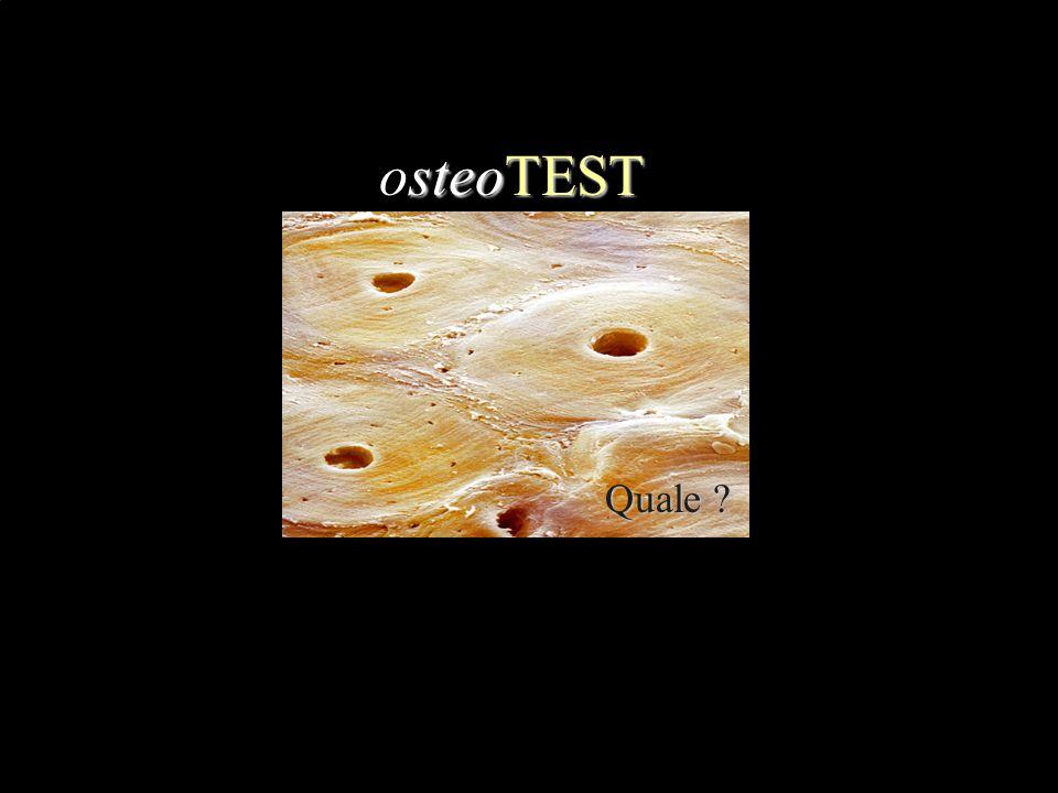 Tutte queste affermazioni sulla OSSIFICAZIONE DIRETTA sono vere meno una: identificala E' caratteristica delle ossa piatte Forma nuclei o centri di ossificazione Gli osteoblasti si trasformano in osteociti Forma osteoni primari che verranno riassorbiti E' anche detta mantellare .