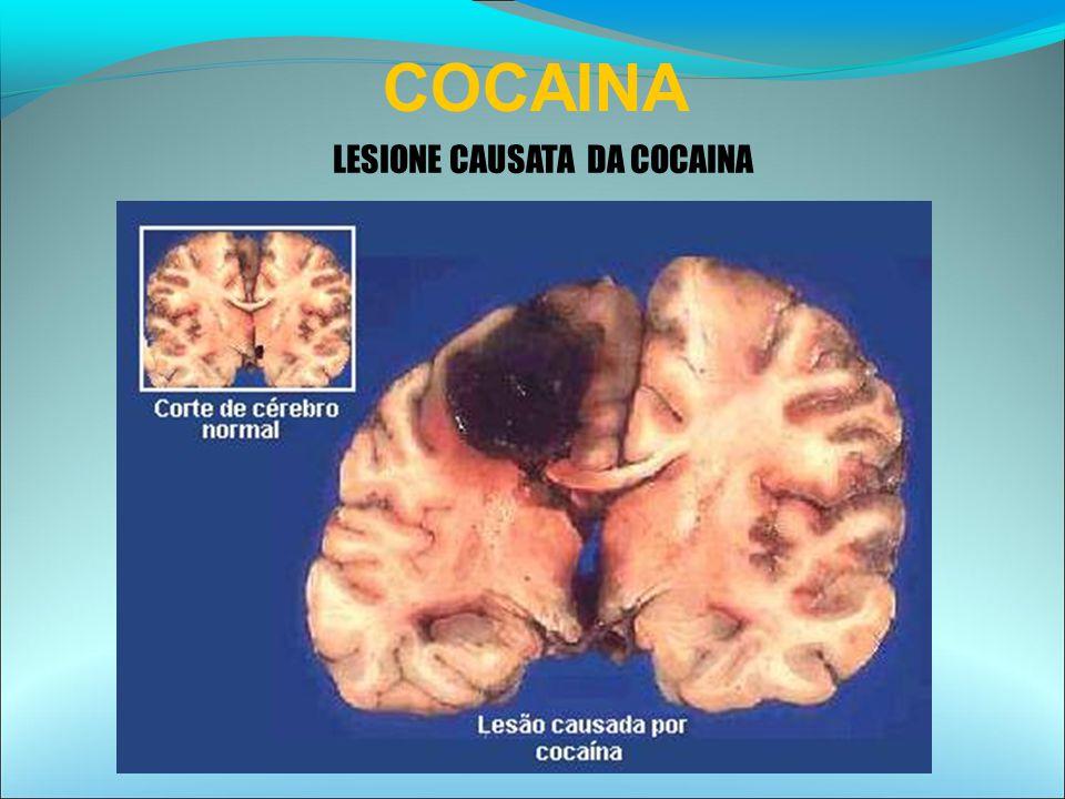 LESIONE CAUSATA DA COCAINA COCAINA