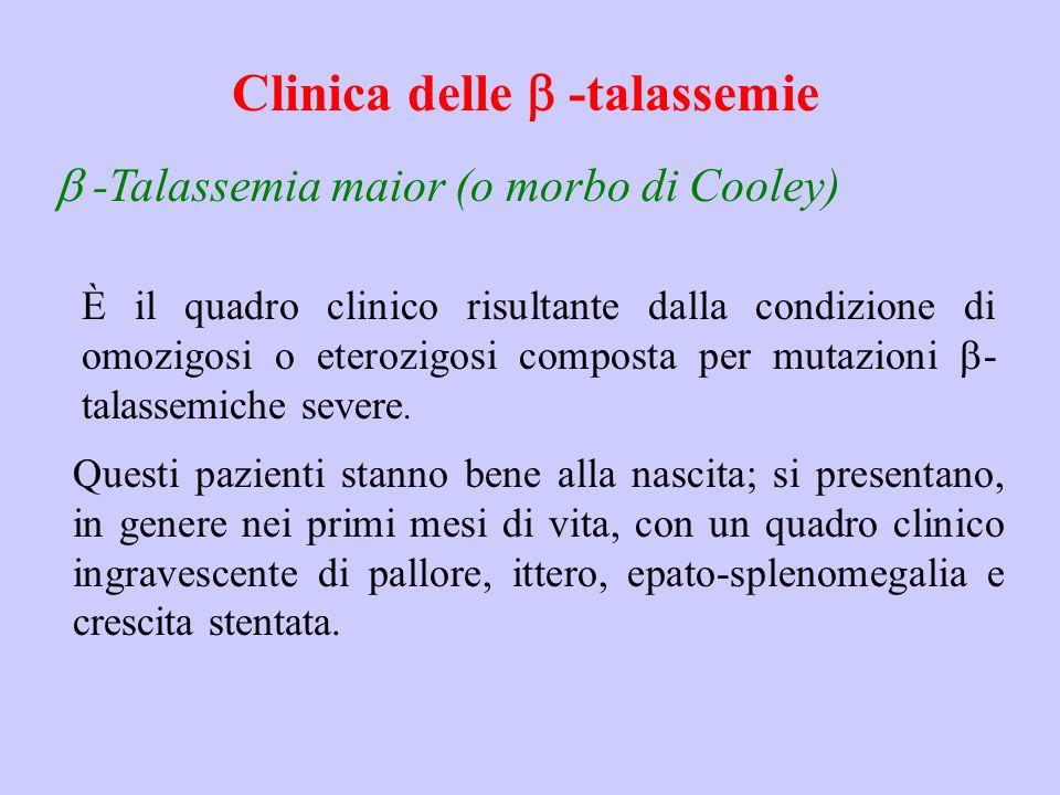 Clinica delle  -talassemie  -Talassemia maior (o morbo di Cooley) È il quadro clinico risultante dalla condizione di omozigosi o eterozigosi compo