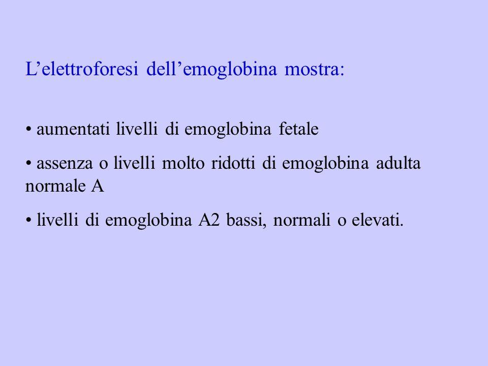 L'elettroforesi dell'emoglobina mostra: aumentati livelli di emoglobina fetale assenza o livelli molto ridotti di emoglobina adulta normale A livelli
