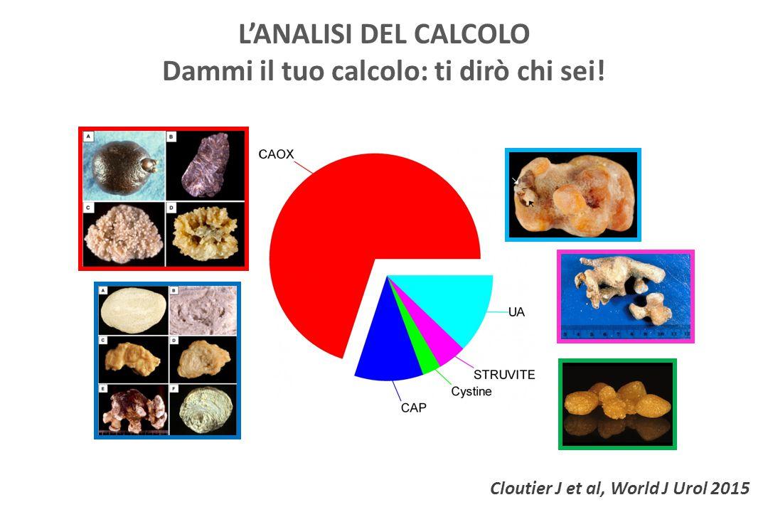 Cloutier J et al, World J Urol 2015 L'ANALISI DEL CALCOLO Dammi il tuo calcolo: ti dirò chi sei!