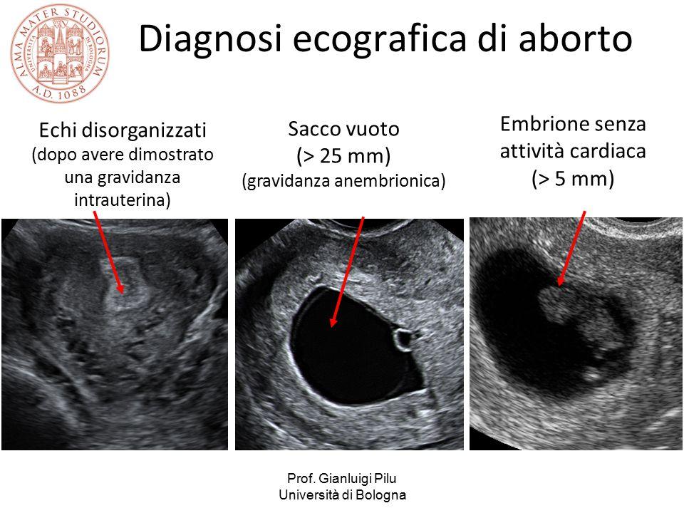 Prof. Gianluigi Pilu Università di Bologna Diagnosi ecografica di aborto Sacco vuoto (> 25 mm) (gravidanza anembrionica) Embrione senza attività cardi