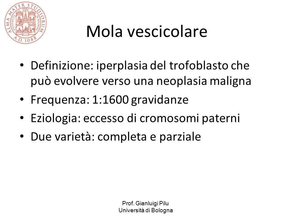 Prof. Gianluigi Pilu Università di Bologna Mola vescicolare Definizione: iperplasia del trofoblasto che può evolvere verso una neoplasia maligna Frequ